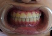 受け口と前歯の乱ぐい歯矯正