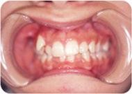 乱ぐい歯の矯正