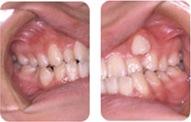 八重歯の矯正症例