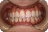 歯数不足の症例